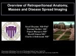 Overview of Retroperitoneal Anatomy, Masses and Disease Spread Imaging