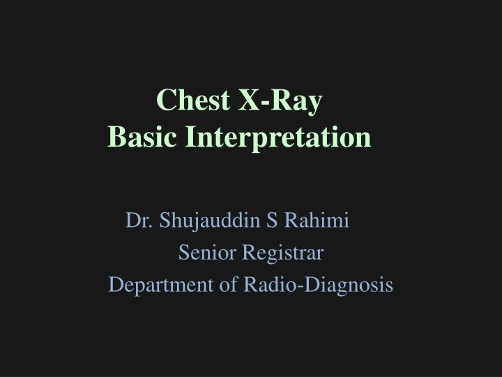 chest x ray basic interpretation n.