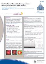 Prostate  Cancer Treated by  Sonodynamic and Photodynamic Therapy  ( SPDT, NGPDT)
