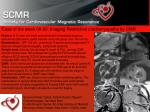Case of the week 08-20: Imaging Restrictive cardiomyopathy by CMR
