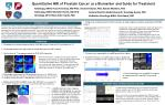Quantitative MRI of Prostate Cancer as a Biomarker and Guide for Treatment