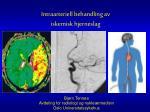 Bjørn Tennøe Avdeling for radiologi og nukleærmedisin Oslo Universitetssykehus