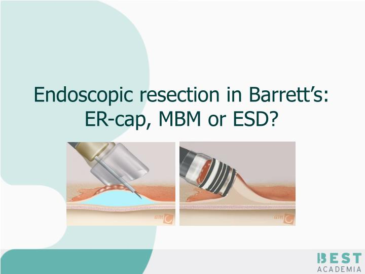 endoscopic resection in barrett s er cap mbm or esd n.