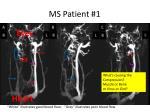 MS Patient #1