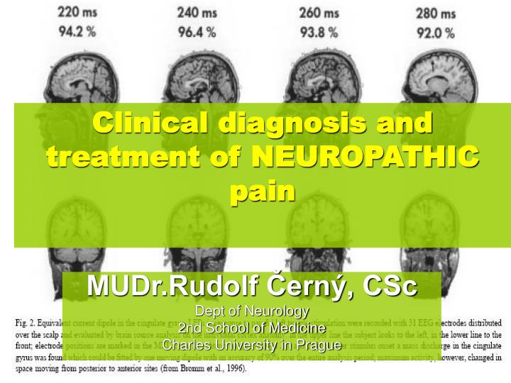 clinical diagnosis and treatment of neuropathic pain n.