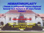 Oleh Mohammad Zaim Chilmi Department of Orthopaedic & Traumatology